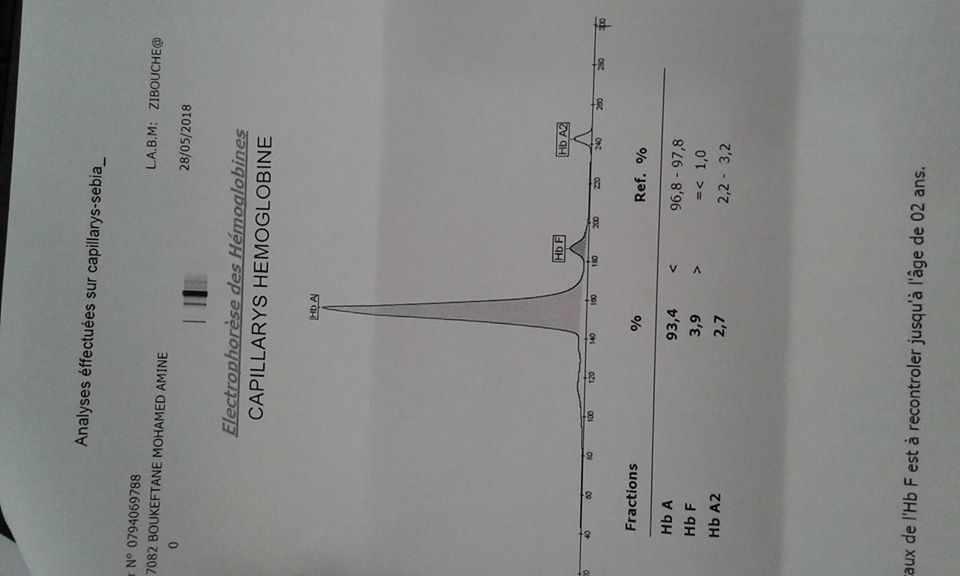 الهيموجلوبين F ف 3 9 بعمر 9 شهور