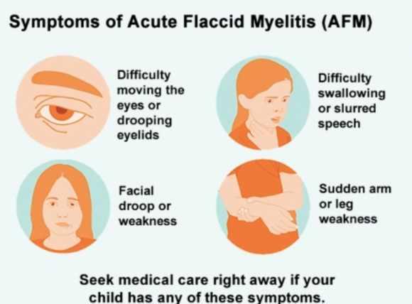 أعراض التهاب النخاع الرخو الحاد