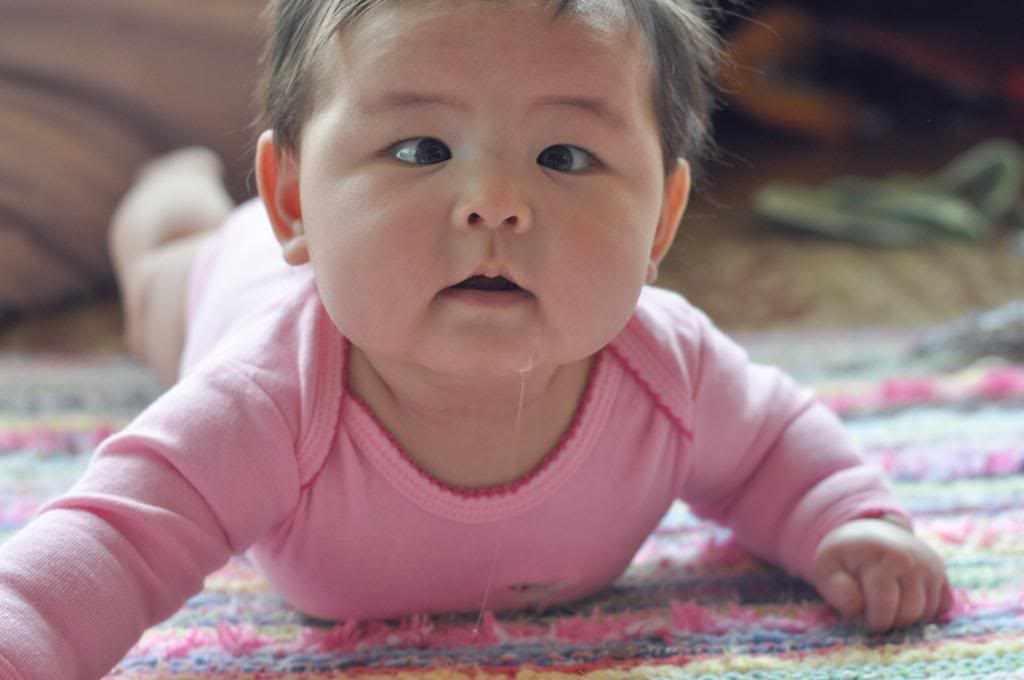 34665ea6b اسباب الحول في العين عند الاطفال و الرضع