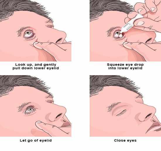 طريقة وضع قطرة العين للأطفال