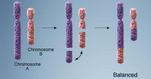 خلل الكروموسومات عند الأطفال و علاجه