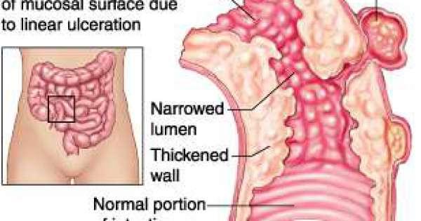 ماهي اعراض الكرون
