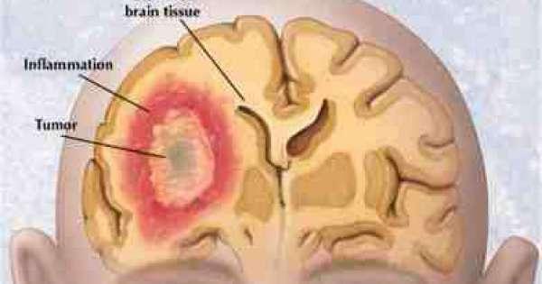 سرطان الدماغ عند الأطفال اسباب اعراض تشخيص علاج